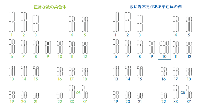 Comparison between normal and an abnormal number of chromosomes.
